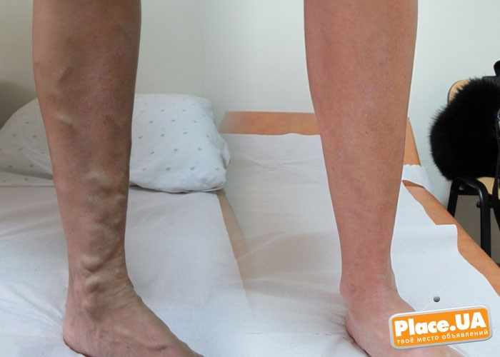 Физиопроцедуры при варикозе вен